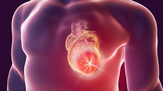 Informasi Medical Hacking tentang Penyakit Jantung
